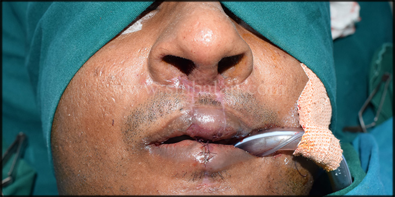 Immediately after suture removal showing enhanced appearence of the nose and upper lip