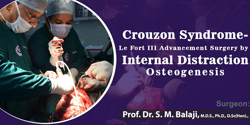 Crouzon Syndrome – Le Fort III Advancement Surgery by Internal Distraction Osteogenesis
