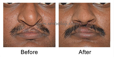 Successful surgical correction of the upper lip and nose defect using Abbe flap