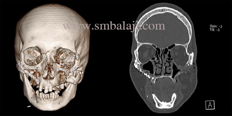 Facial Reconstruction Surgery in India
