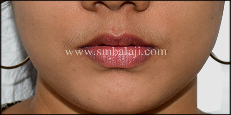Best Jaw Surgery hospital in india