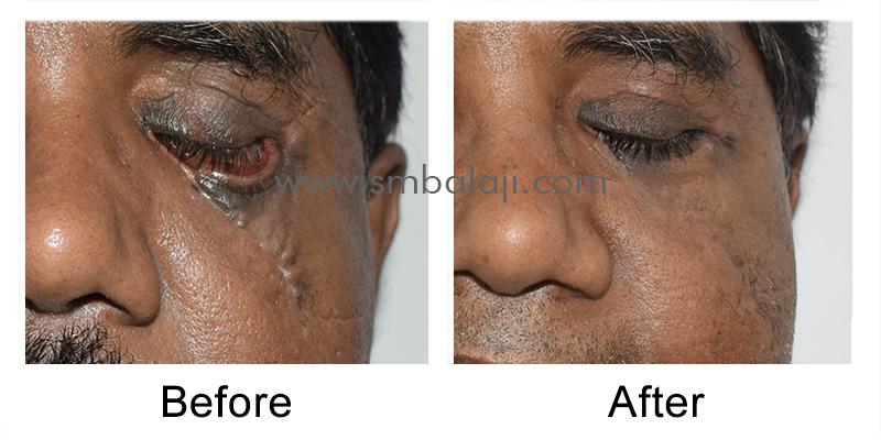 Cheekbone Fracture Surgery