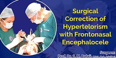 Hypertelorism Surgery in India