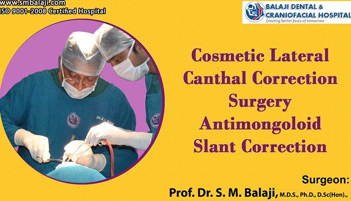 Cosmetic Eye Surgery in Chennai, India
