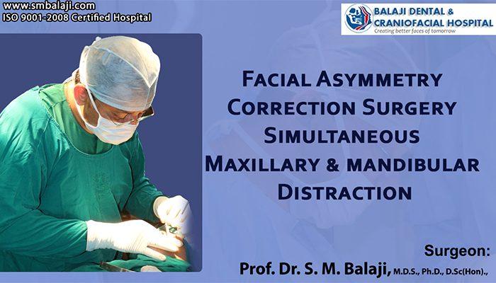 Facial Asymmetry Correction Chennai India