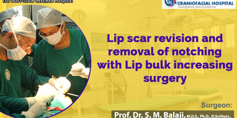 Scar removal Surgery in India