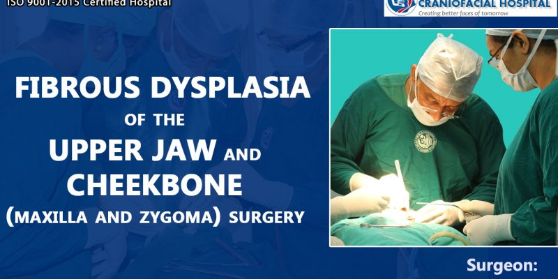 Fibrous Dysplasia of the Upper jaw and Cheekbone