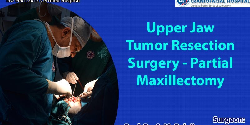Tumor resection Surgery India