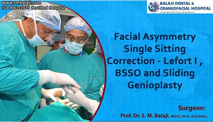 facial asymmetry correction genioplasty india