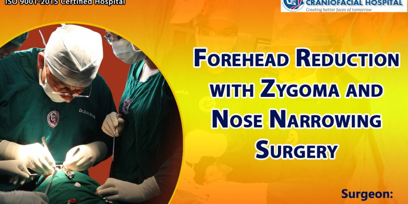 Forehead Reduction with Zygoma and Nose Narrowing Surgery
