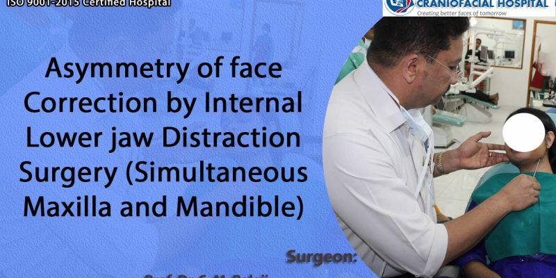 Asymmetry of face Correction by Internal Lower jaw Distraction Surgery