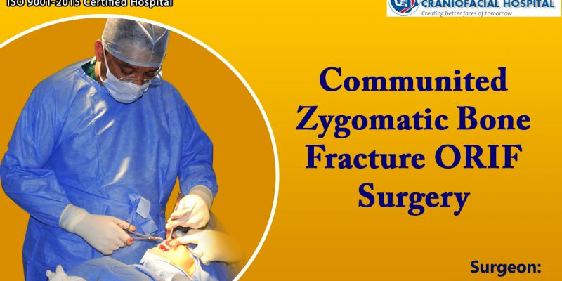 Comminuted Zygomatic Bone Fracture ORIF Surgery