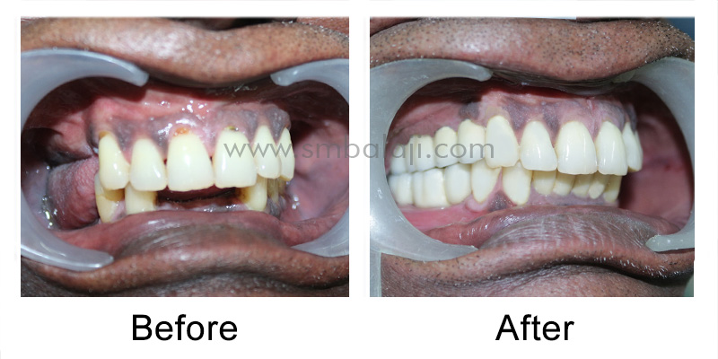 Dental Implant and Ceramic Prosthesis Patient before and after enhancement