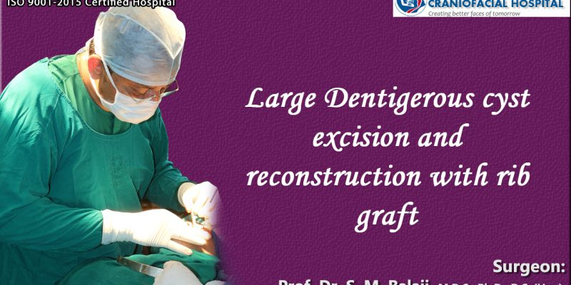 Large Dentigerous cyst excision and reconstruction with rib graft