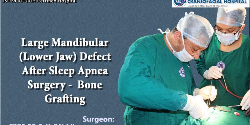 Large mandibular defect (Lower jaw) after sleep apnea surgery - Bone grafting