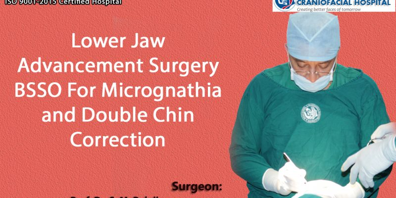 Lower Jaw Advancement Surgery BSSO For Micrognathia and Double Chin Correction