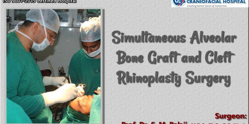 Simultaneous Alveolar Bone Graft and Cleft Rhinoplasty Surgery
