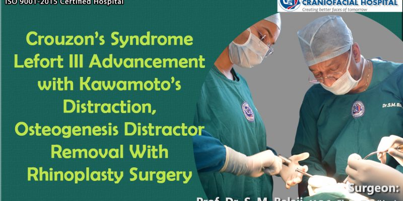 Crouzon Syndrome Lefort III Advancement with Kawamoto's Distraction, Osteogenesis Distractor Removal With Rhinoplasty Surgery