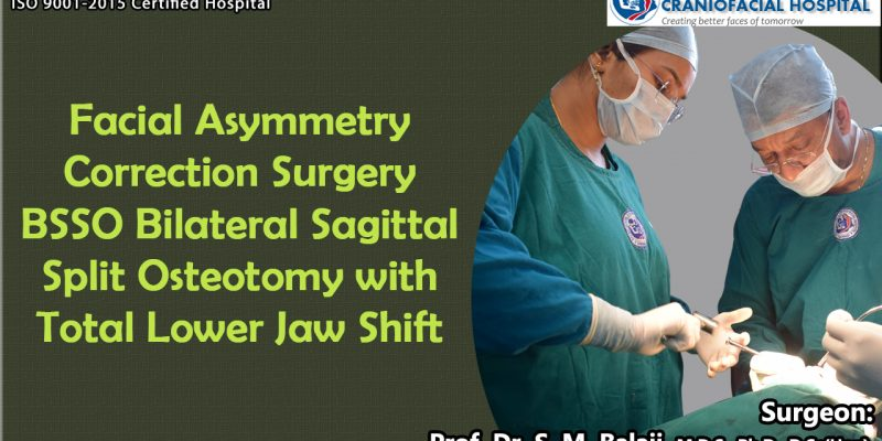 Facial Asymmetry Surgery BSSO Bilateral Sagittal Split osteotomy with Total Lower Jaw Shift