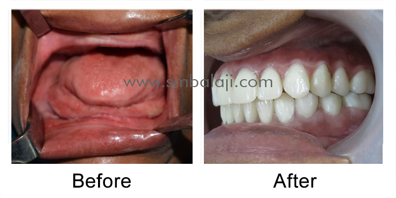 Zygoma Implant Patient before and after