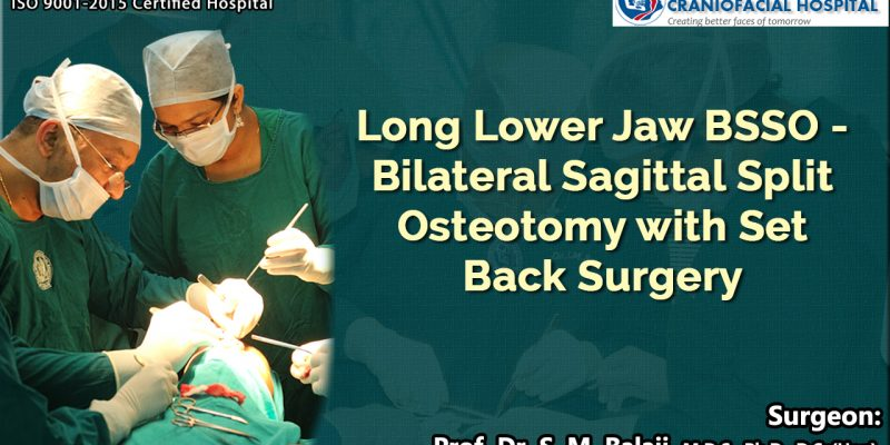 Long Lower Jaw BSSO - Bilateral Sagittal Split Osteotomy with Set Back Surgery