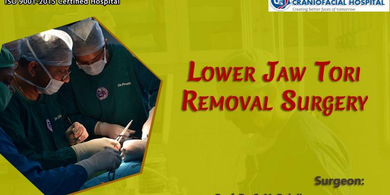 Jaw Tori Removal Surgery