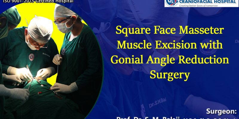 Square Face, Masseter Muscle Excision failed - Resurgery with Gonial Angle Reduction