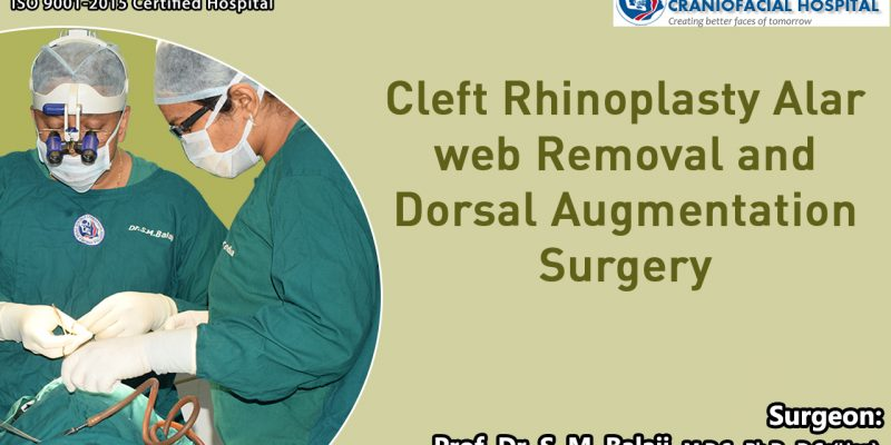 Cleft Rhinoplasty Alar web Removal and Dorsal Augmentation Surgery