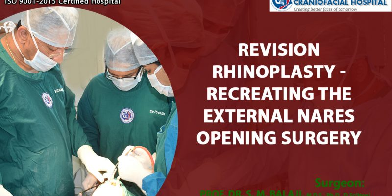 Revision rhinoplasty – Recreating the External Nares Opening Surgery