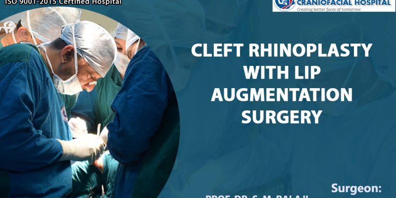 Cleft Rhinoplasty with Lip Augmentation Surgery