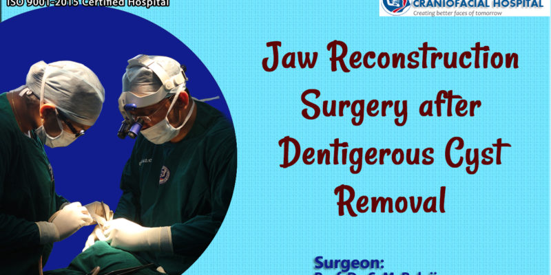 Jaw Reconstruction Surgery after Dentigerous Cyst Removal