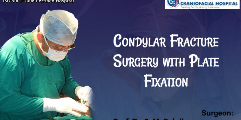 Condylar Fracture Surgery