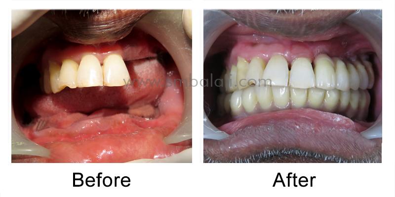 Oral Rehabilitation with Dental Implants