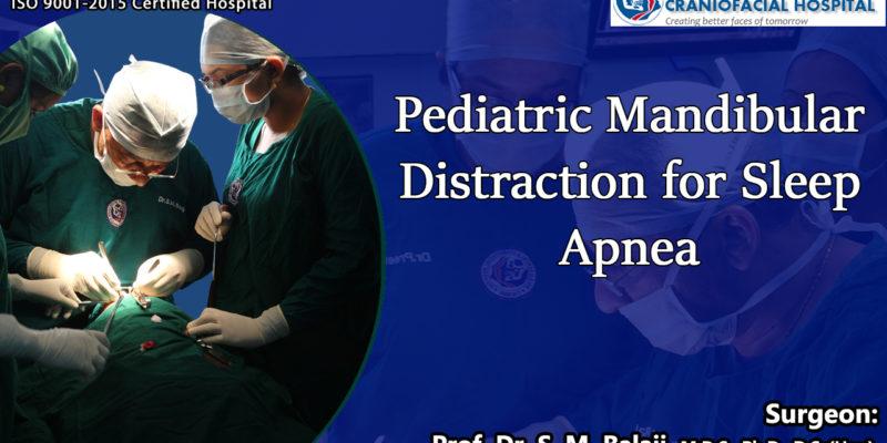 Pediatric Mandibular Distraction for Sleep Apnea