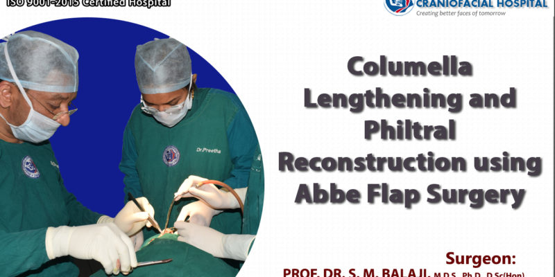 Upper lip reconstruction with lower lip Abbe Flap surgery