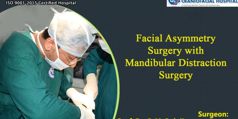 Facial Asymmetry surgery with Mandibular Distraction Surgery