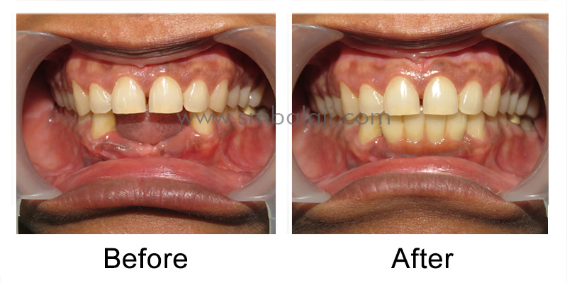 Patient before and after treatment outcome