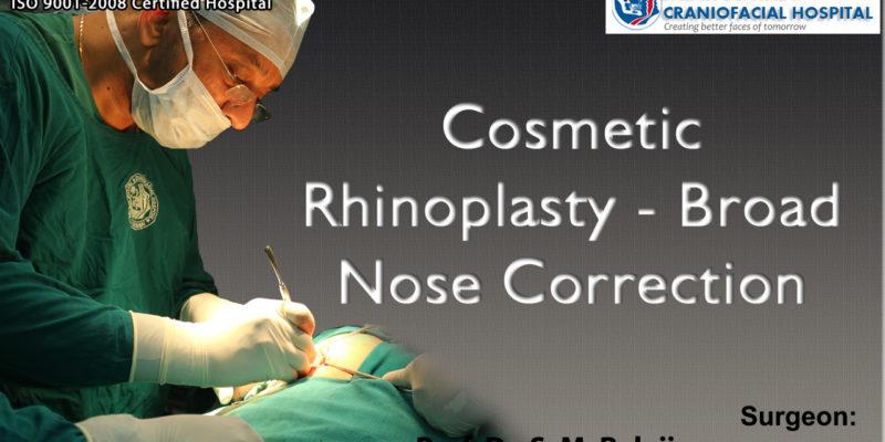 Cosmetic Rhinoplasty - Broad Nose Correction