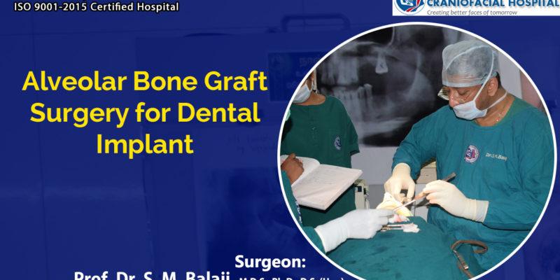 Alveolar Bone Graft Surgery for Dental Implant