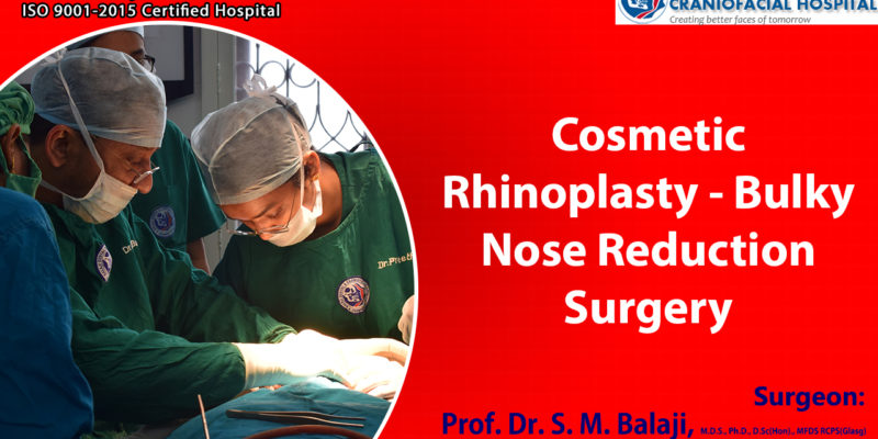 Cosmetic Rhinoplasty – Bulky Nose Reduction Surgery