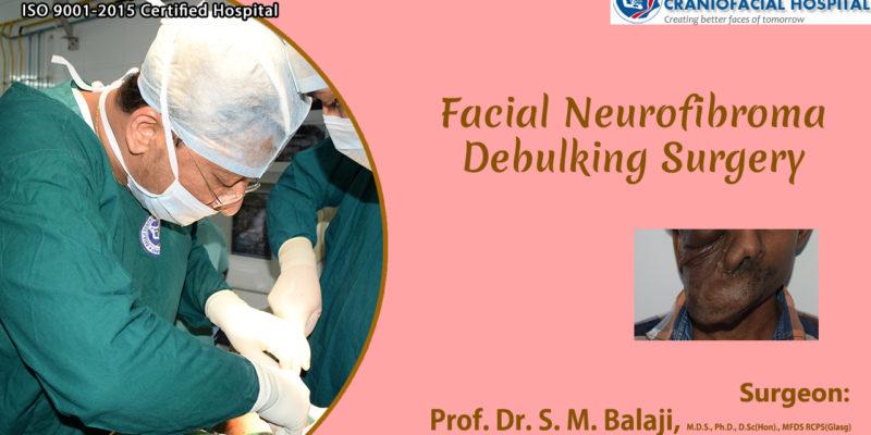 Facial Neurofibroma Debulking Surgery