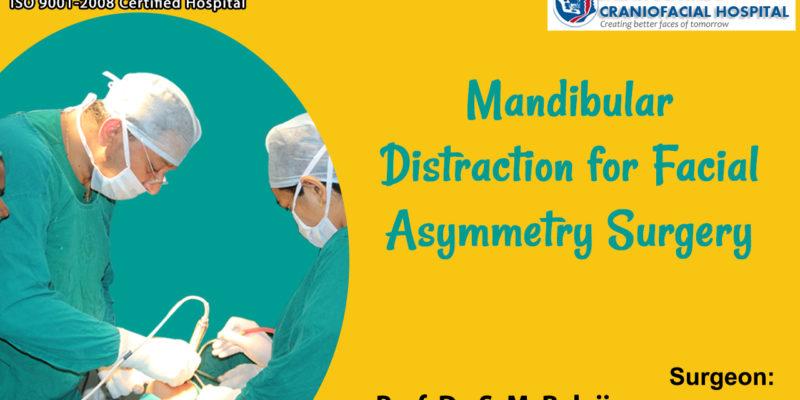 Mandibular Distraction for Facial Asymmetry Surgery