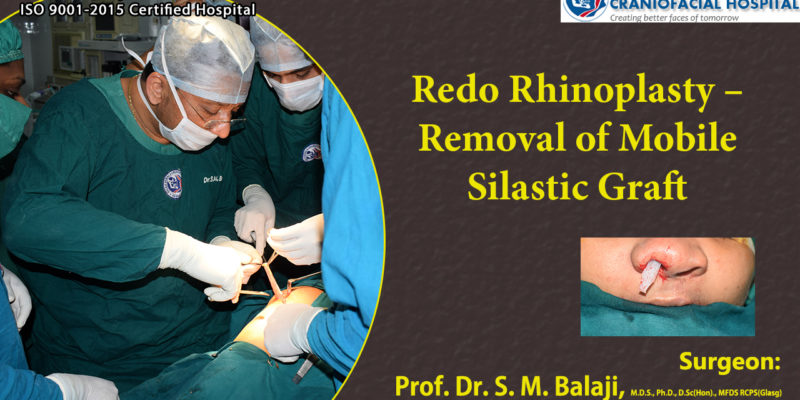 Redo Rhinoplasty – Removal of Mobile Silastic Graft