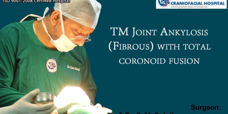 TM Joint Ankylosis (Fibrous) with total coronoid fusion